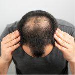 Ung Mand skal have hår for livet set oppefra