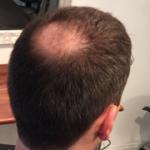 Ung Mand skal have hår for livet hårpåsætning set bagfra